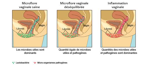 vaginal_flora_fr